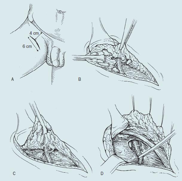 Modifikovaná ingvinální lymfadenktomie – femorální oblast.
