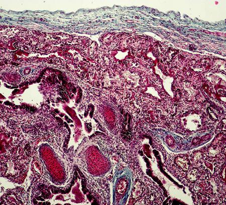 Histologický průkaz závažné hypoplazie plic: redukce počtu bronchů a bronchiolů, snížený radial count (terminální bronchioly se nacházejí těsně pod pleurou a nejsou odděleny řadou 4-5 alveolů), zmnožení mezenchymálních tkání (chrupavka, vazivo) kolem bronchiolů, intersticiální zmnoženi vaziva (barvení na vazivo - modrý trichrom, publikováno se souhlasem Ústavu patologie VFN a 1. LF UK)
