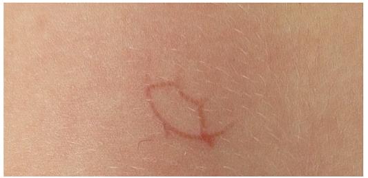 Projev kožní infekce u naší pacientky. Fig. 1. Manifestation of the skin infection at our patient.