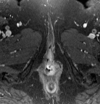 Karcinom vulvy: sytící se infiltrát v rozsahu malého labia vlevo a introitu pochvy.