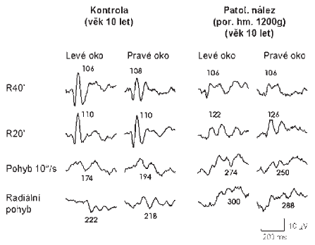 Patologický nález zrakových evokovaných potenciálů