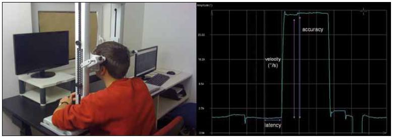 Fig. 7, 8. Eye movement recording with video-based infrared oculography (infra-red eye tracking). The investigation takes place in an optically and acoustically shielded room. The patient sits, with the head stabilised by a chin rest, in a comfortable chair. The screen carried a horizontal and vertical array of red light-emitting diodes. Visually guided saccades are presented for horizontal and vertical directions. Movements of both eyes are recorded at a sampling rate of 300 Hz. The following parameters are extracted separately for left, right, up, and down: (1) gain or accuracy, (2) saccade peak velocity, (3) saccade latency.