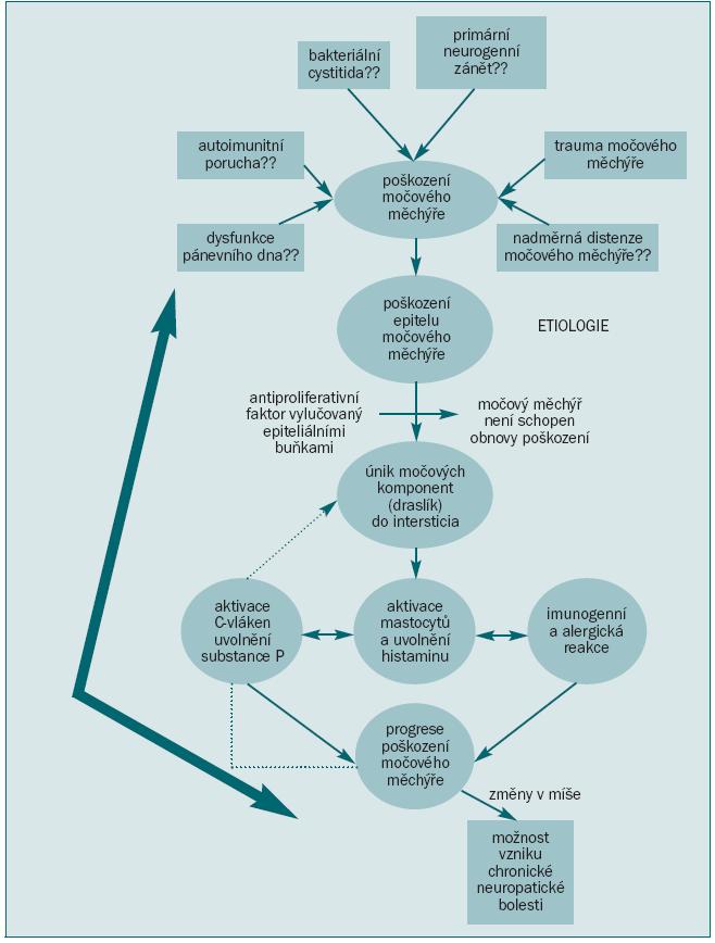 Schéma 4. Schéma patogeneze syndromu bolesti v močovém měchýři.