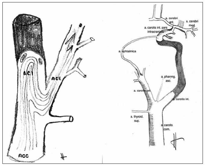 Schematické znázornění cesty embolizace z pahýlu okludované vnitřní krkavice do zevní krkavice.