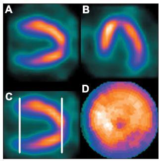 Snížené množství radioaktivity na vrcholu srdečního hrotu (apikální jamka). Hranice mezi komorou a hrotem není určena na okraji komory, ale ve stěně hrotu (C) – na polární mapě se toto zobrazuje jako arteficiální snížení perfuze v oblasti hrotu (D).