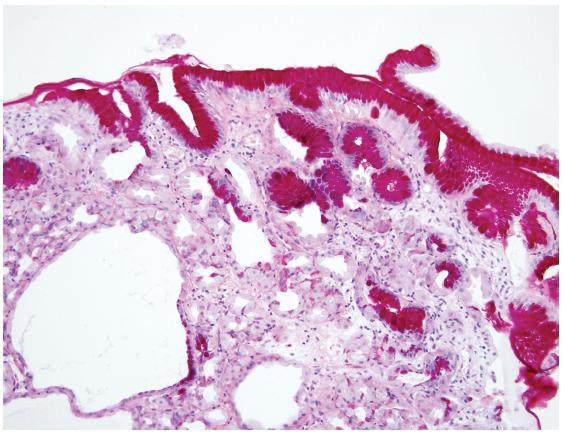 Cystický polyp žlázek žaludečního těla Výstelka cyst je místy oploštělá s podílem parietálních buněk, hlavních buněk a mucinózních epitelií (PAS-alciánová modř, 200×).