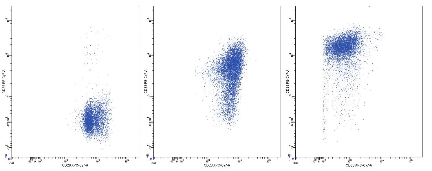 Variabilní exprese znaků CD20 a CD38, dvouparametrové dot plot diagramy, CD20 na vodorovné a CD38 na svislé ose, logaritmická škála exprese na obou osách