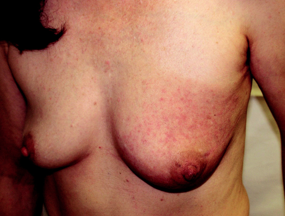 Carcinoma erysipelatoides