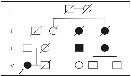 Fig. 1. Four-generation pedigree chart which demonstrates autosomal dominant trait with incomplete penetrance. The patient is indicated by the arrow.
