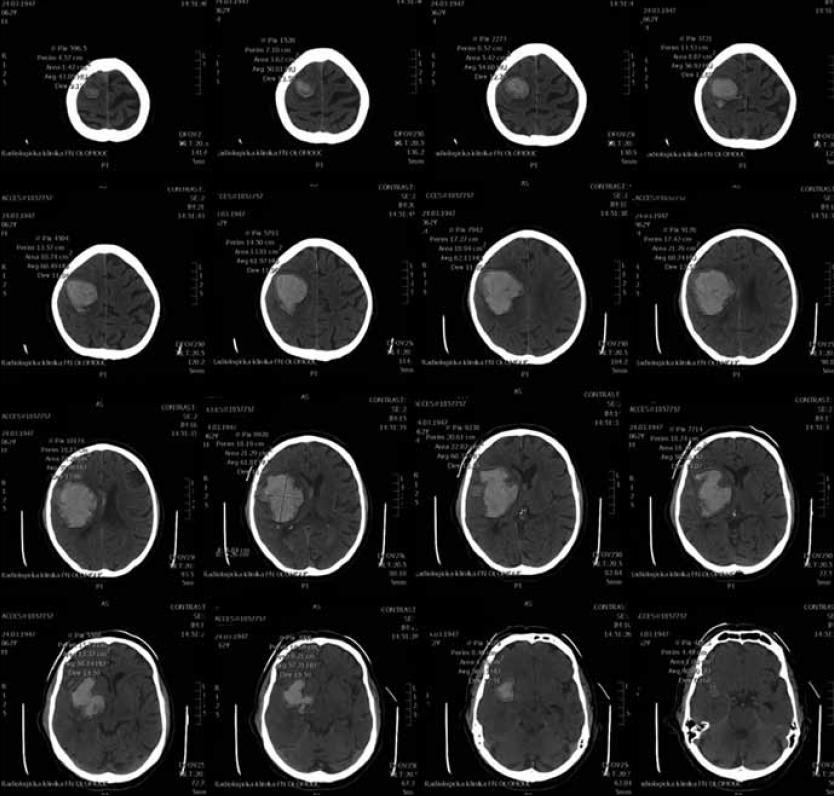 CT skeny pro manuální výpočet objemu.
