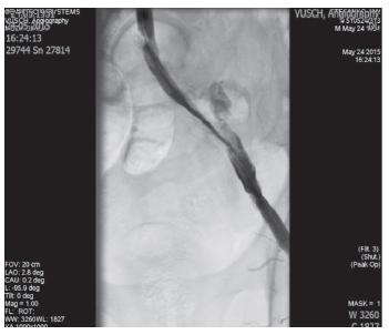 Implantácia stentgraftu do AIE l.sin. Fig. 5: Implantation of the stentgraft in AIE l.sin.