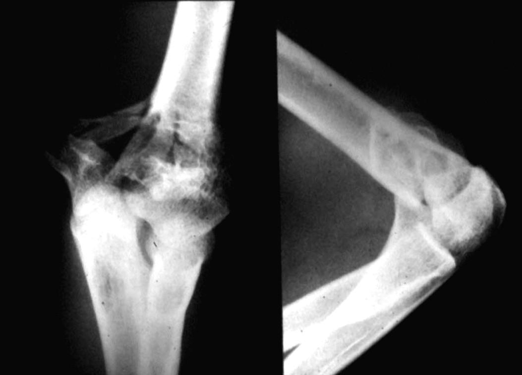 Obr. 2a. Tříštivá mnohaúlomková interkondylická zlomenina humeru u adolescentní dívky