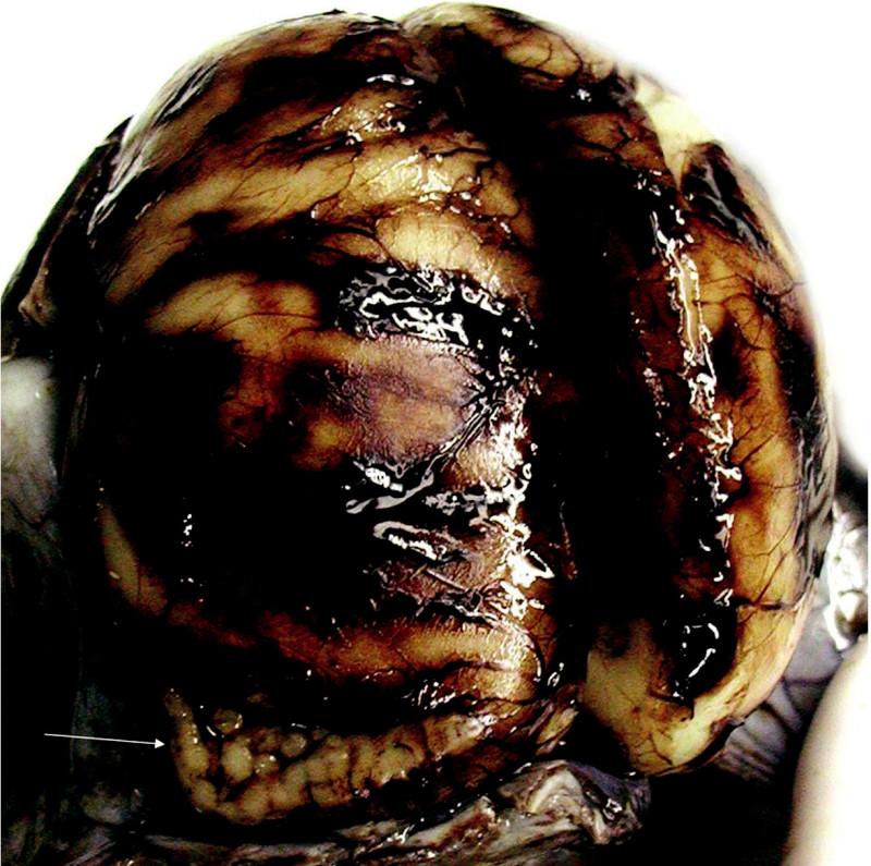Po nastřižení lebečních švů, dutina lební fixována vcelku. Typická polymikrogyrie v okolí komunikace postranních komor se subarachnoideálním prostorem (šipka)