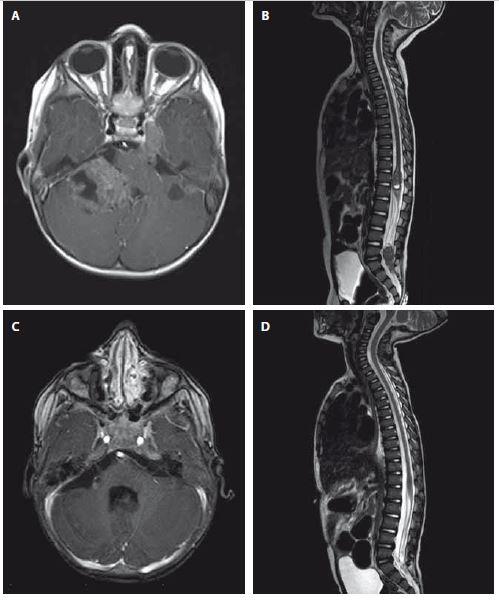 A–D. Magnetická rezonance. Axiální T1 vážený postkontrastní obraz ukazující nehomogenně sytící se ložisko v zadní jámě lební vpravo, které zasahuje do foramen magnum, infiltruje pravou cerebelární hemisféru a mozkový kmen (obr. A). Dále jsou na axiálním zobrazení patrné menší útvary – metastázy podobného vzhledu v zadní jámě lební vlevo, v oblasti Gasserského ganglia vlevo a v pravém hippokampu. T2 vážený obraz páteřního kanálu odhalující 2 metastatická ložiska Th11–L1 a L4–S2 (obr. B). Obr. 2C a 2D zobrazuje kontrolní MR mozku a cerebrospinální osy, 7 měsíců od primární resekce je patrná jasná regrese primárního ložiska vč. všech metastatickým lézí. Fig. 2A–2D Magnetic resonance. T1-weighted images showing heterogenously enhancing tumor of posterior skull fossa reaching foramen magnum and infiltrating right cerebellar hemisphere and brain stem (A). Furthermore, other foci of metastasis in left posterior skull fossa, in ganglion Gasseri regionand in right hippocampus are visible. T2-weighted image of spinal cord showing 2 metastatic foci Th11–L1 and L4–S2 (B). Fig. 2C and 2D follow-up MRI after 7 months since primary resection showing regression of both primary lesion and metastatic foci.