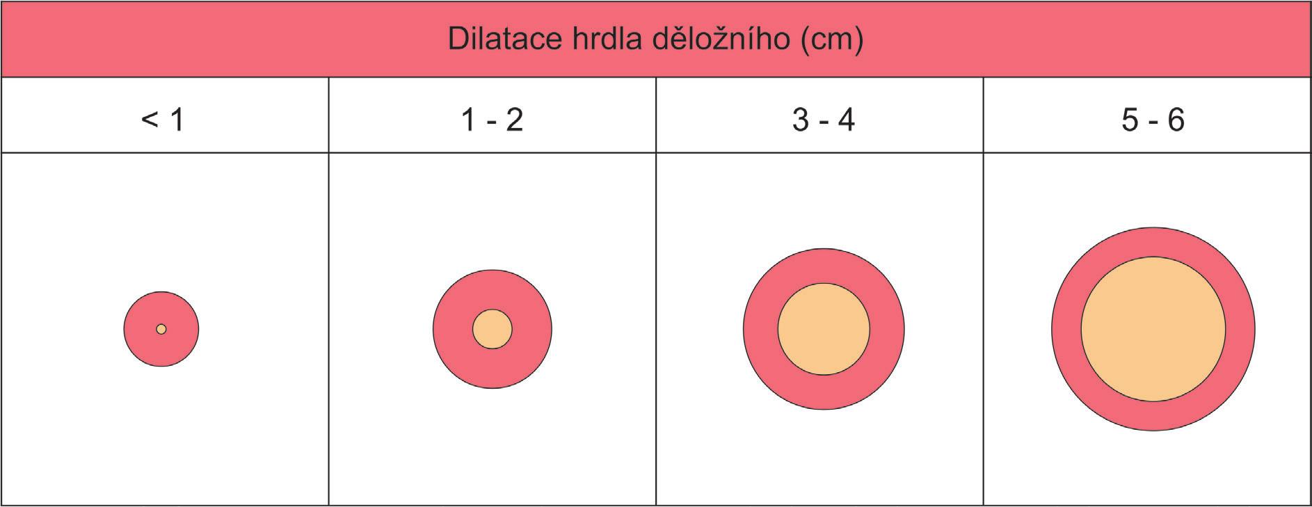 Hodnocení DILATACE hrdla děložního