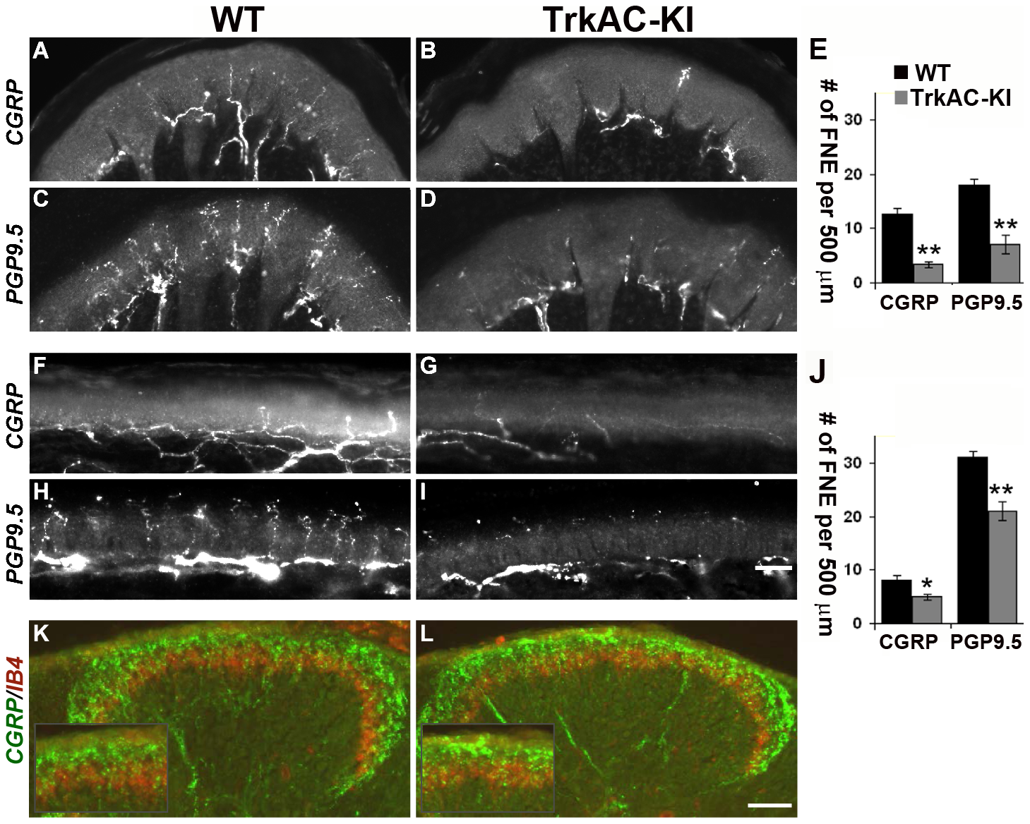 Peripheral, but not central innervation is drastically reduced in TrkAC-KI mice.