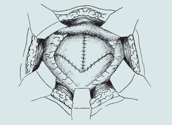 Clam-cystoplastika - ileální augmentace. (A – příprava a rozpolcení m.m., B – izolace distálního segmentu ilea, C – uzavření mezenteria a anastomóza střevní end-to-end, D – detubularizace ileálního segmentu a vytvoření ileální záplaty, E - anastomóza záplaty s měchýřem a uzavření plastiky m.m.)