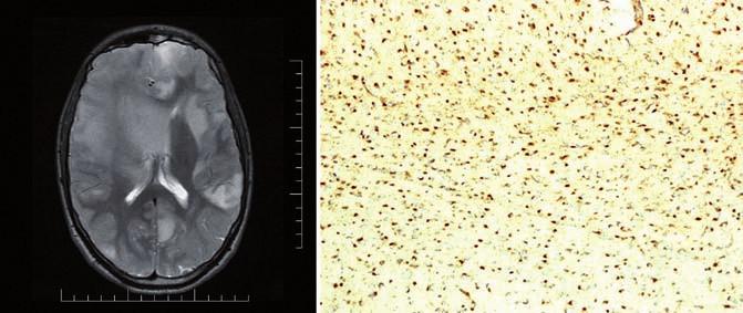 T2 vážený MR obraz pacienta s Ollierovou chorobou, nalezeny vícečetné difuzní astrocytomy mozku (A) a imunohistochemický průkaz mutace <i>IDH1</i> R132H, 100% pozitivita (B). Fig. 1. T2-weighted MR image of a patient with the Ollier disease, multiple diffuse astrocytomas of the brain found (A) and immunohistochemical evidence of the <i>IDH1</i> R132H mutation, 100% positivity (B).