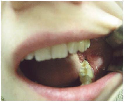 Poextrakční zánět zubního lůžka po extrakci zubu 38, třetí den po chirurgické extrakci