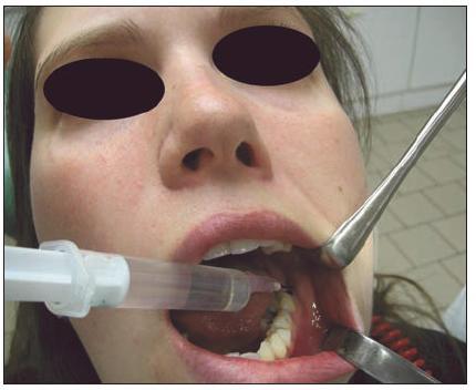 Výplach nečistot z prázdného zubního lůžka 38 pomocí 3% H<sub>2</sub>O<sub>2</sub>