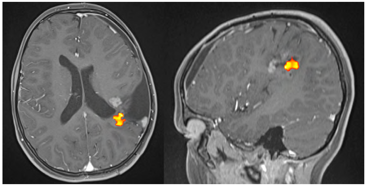 Dětský pacient po opakovaných resekcích ependymomu levé hemisféry temporoparietálně, aktivita senzorického centra se promítá do blízkosti tumoru (světle šedé ložisko před oblastí aktivace), řečové centrum je na základě předchozích chirurgických výkonů oproti normálnímu stavu dislokováno mediálně