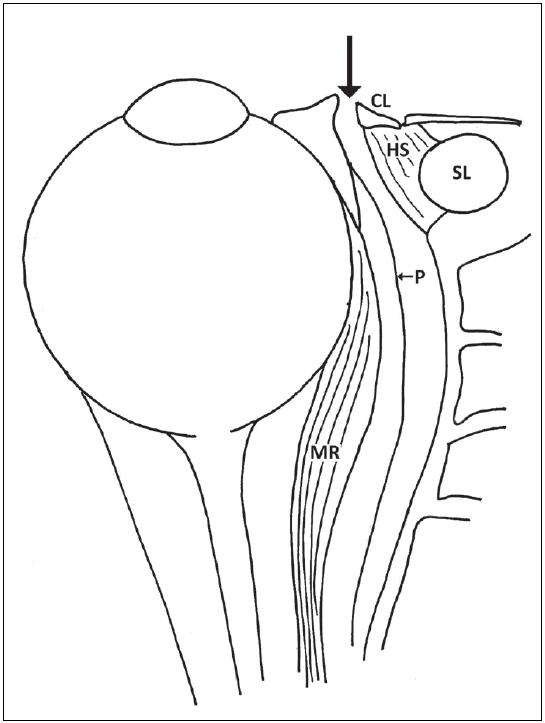 Disekce mezi caruncula lacrimalis a plica semilunaris a dále mezi periorbitou a mediální stěnou orbity.