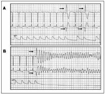 Komorová extrasystola iniciující fibrilaci komor u pacientky se srdeční amyloidózou. EKG-záznam a křivka invazivně měřeného krevního tlaku: (A) během izolovaných komorových extrasystol vycházejících z levé komory, (B) během extrasystoly identické morfologie (šipky), která spustila FK.