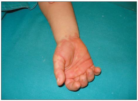 Zarudnutí dlaní u nemocného s Kawasakiho syndromem. <em>(Archiv dr. F. Falcini, Itálie, publikování s povolením autora i rodiny.)</em>