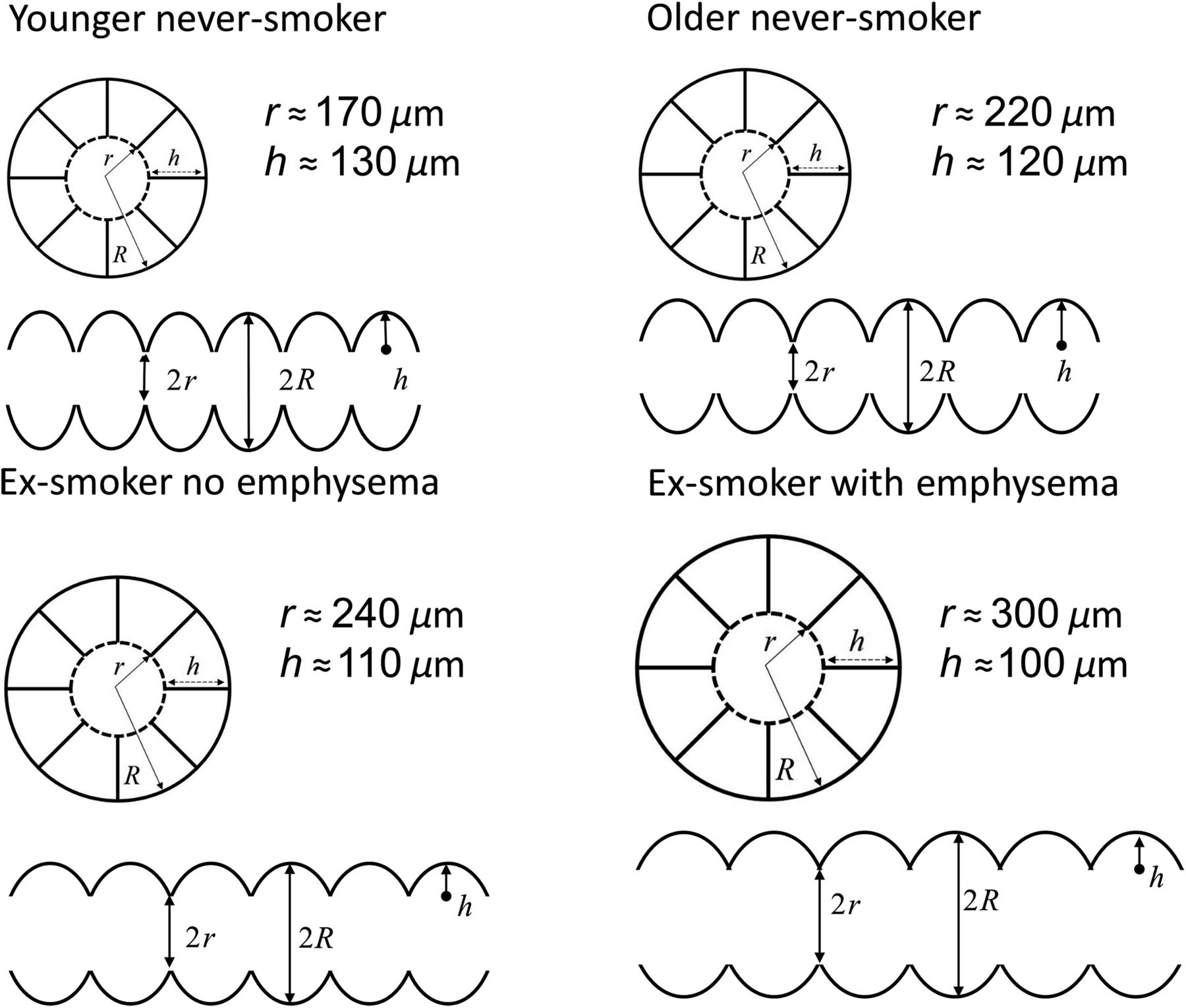 Figure 4. Alveolar duct schematic. Acinar duct and alveolar morphological parameters were based on Weibel model (Weibel 1963) for acinar duct parameters shown for a representative young never‐smoker (Quirk et al. 2015), elderly never‐smoker, and elderly never‐smoker with and without emphysema.