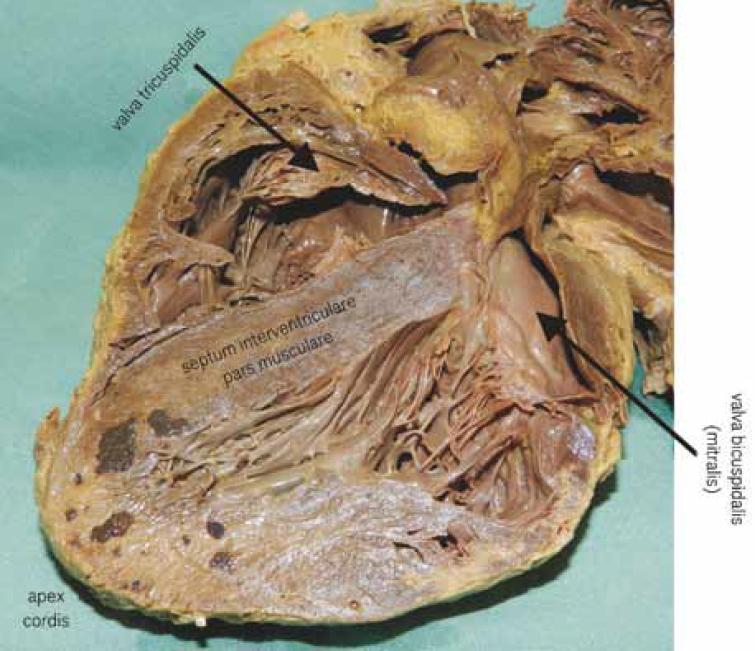 Anatomické poměry (foto archiv autora).