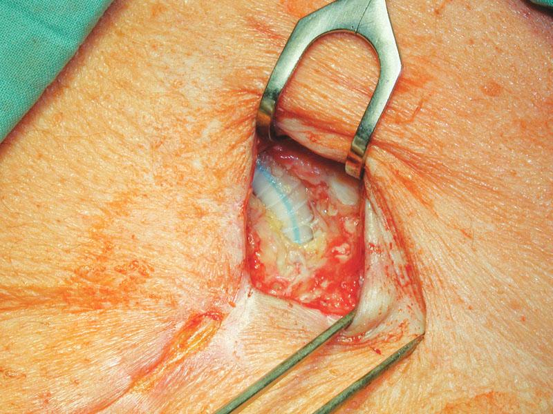 Stav po nekrektomii před přiložením V.A.C. Fig. 3. A wound after necrectomy before V.A.C. application