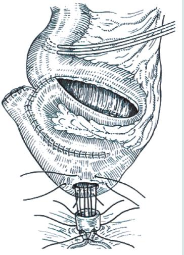 Obr. 10E. Anastomóza neoveziky s uretrou.