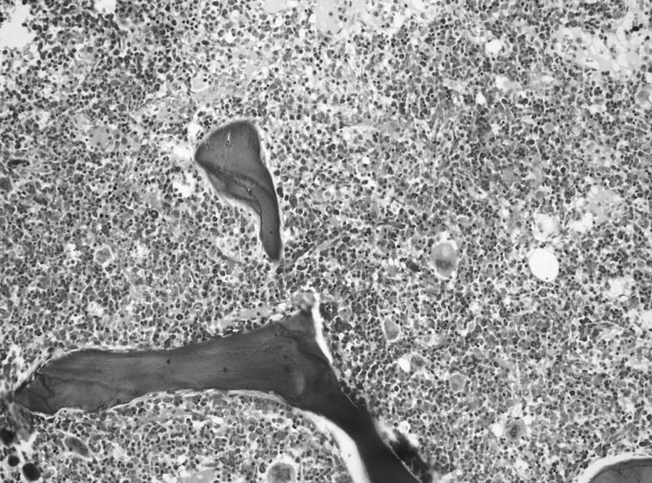 Druhé trepanobioptické vyšetrenie: hypercelulárna dreň s črtami myeloproliferatívnych a myelodysplastických zmien (Giemsa, 20x). Fig. 4. Second trepanobioptic examination: hypercellular bone marrow with marks of myeloproliferative and myelodysplastic changes (Giemsa, 20x).