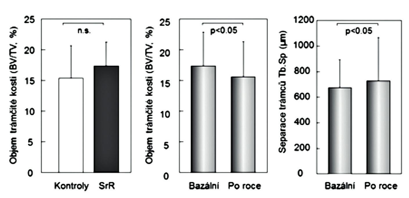 Vlevo: objem kostní hmoty v nepárových biopsiích u 21 žen placebové skupiny a u 20 žen léčených 3 roky stroncium ranelátem. Uprostřed a vpravo: objem trámčité kostní hmoty a separace trámců v párových biopsiích u 89 žen před léčbou a po roce léčby stroncium ranelátem. Podle (15) a (24).