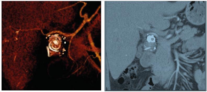 Angioembolizace poraněné jaterní tepny