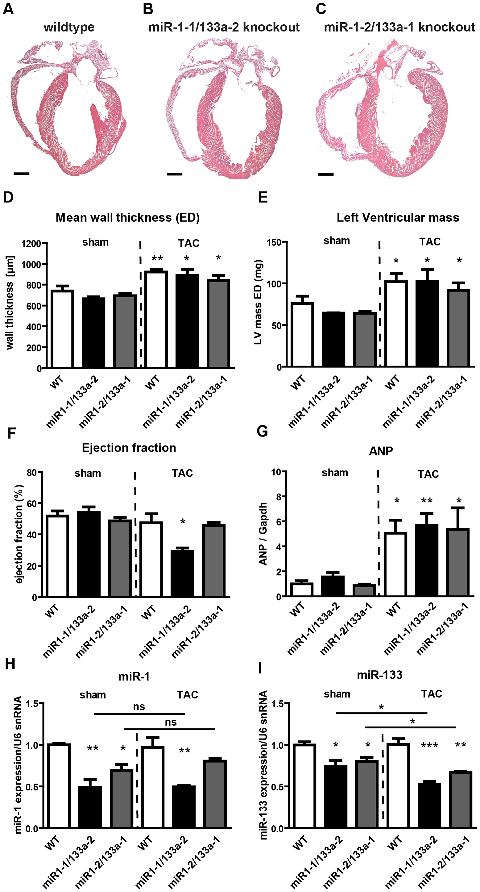 Deletion of single <i>miR-1/133a</i> clusters does not cause gross morphological alterations in the heart but results in decreased ejection fraction in <i>miR-1-1/133a-2</i> mutants after TAC.