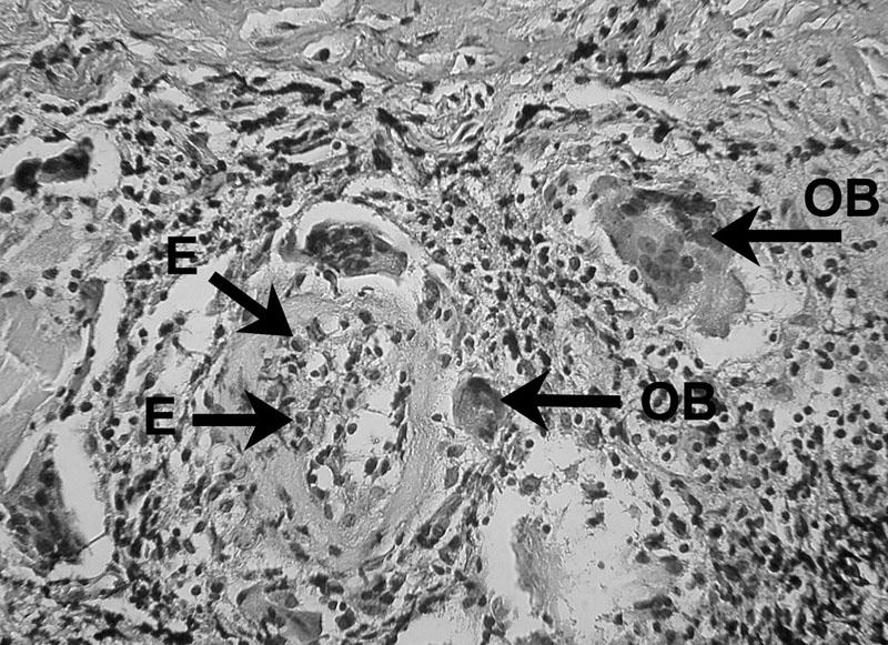Zápalový bunkový infiltrát prítomný v periapikálnom granulóme V histopatologickom obraze lézie možno vidieť eozinofily (E) a obrovské bunky (OB) – autor Ján Kováč. Fig. 4. Inflammatory cell infiltrate in periapical granuloma Histopathological image of the lesion shows eosinophils (E) and giant cells (OB) – Author Ján Kováč.