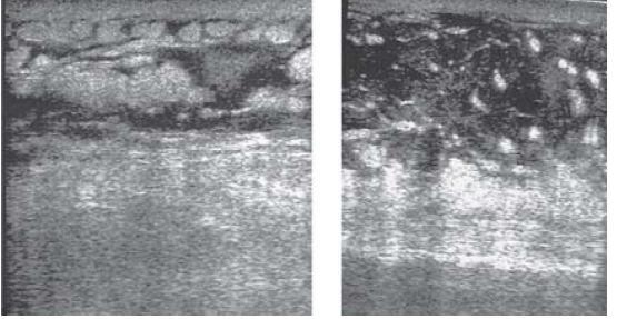 Obr. 6.2. Na USG-snímkach edém a lymfostáza v podkoží predkolenia (vľavo) a chodidla (vpravo)