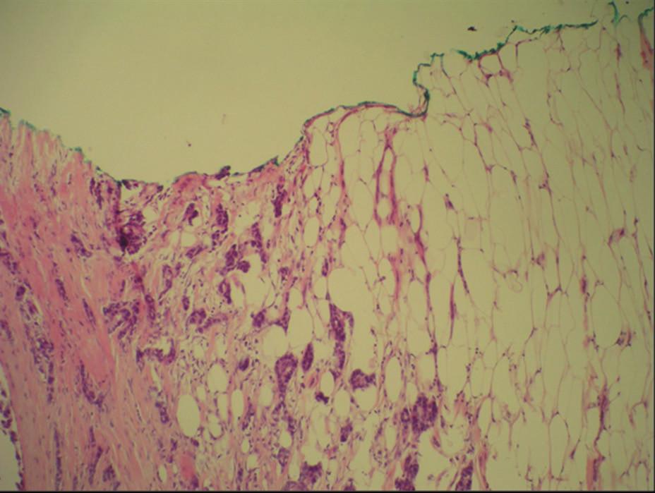 Pozitivní resekční okraj invazivní Ca Fig. 1: Positive margin of invasive Ca