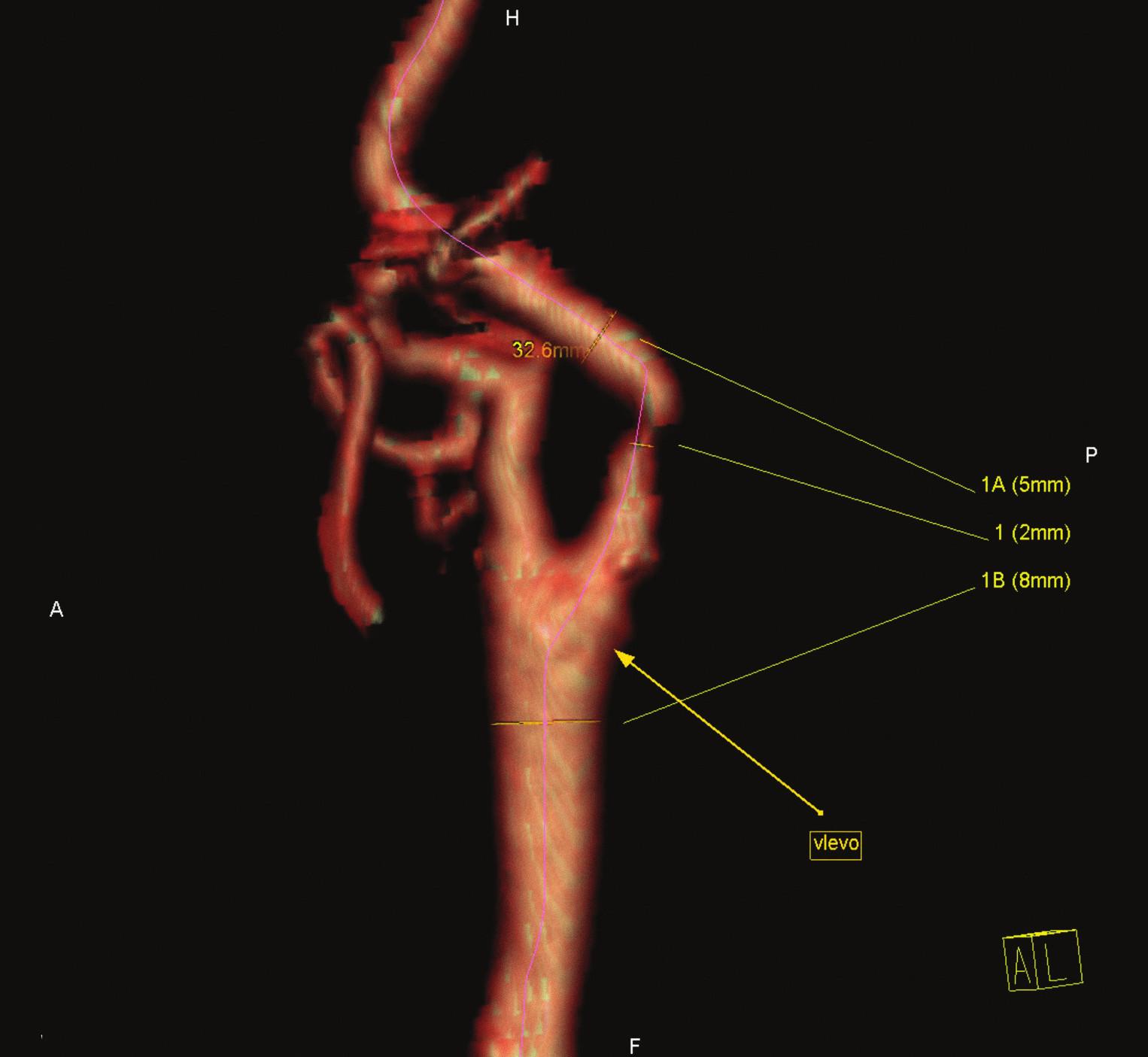 Symptomatická stenóza krkavice dle CT-angiografie.