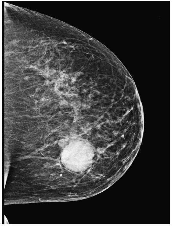 <em>Mastogram</em>. V transparentním žlázovém tělese prsu je evidentní, ostře ohraničené, denzní zastínění podezřelé z neoplázie.