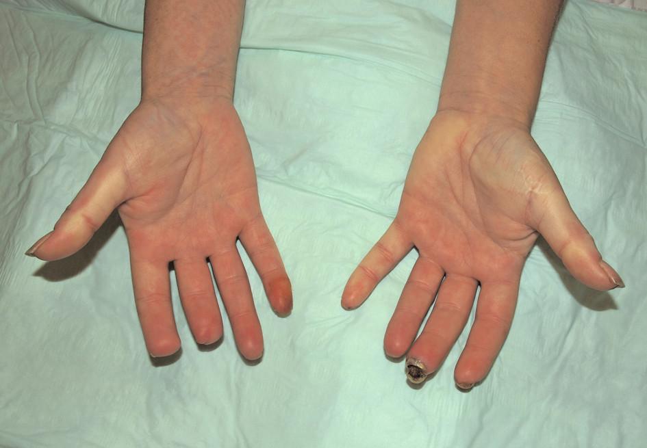 Stav v prosinci 2010. Suchá gangréna distální falangy 3. prstu levé ruky, stav po amputaci distálního článku 2. a 3. prstu pravé ruky.
