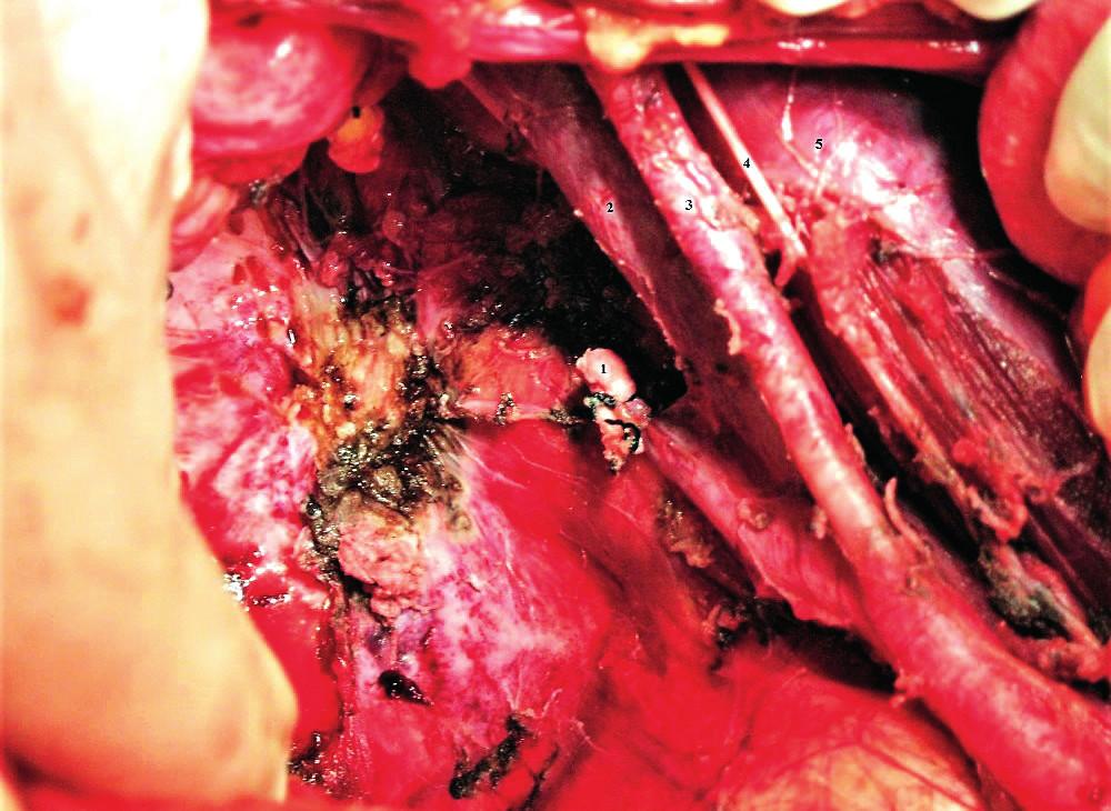 Oblast resekce arteria iliaca interna vpravo