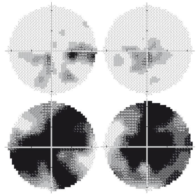 Vyšetření zorného pole u dvou pacientů s LHON na podkladě m.11778G>A mutace. Dvaatřicetiletý pacient 15 let po manifestaci: na pravém oku je několik relativních centrálních skotomů, nazálně až absolutních (A); stav odpovídá nejlepší korigované zrakové ostrosti 0,1. Na levém oku je přítomen centrocékální skotom (B); nejlepší korigovaná zraková ostrost je 0,66. Jedenatřicetiletý pacient 3 roky po manifestaci: absolutní centrální skotomy na pravém (C) i levém (D) oku, které odpovídají nízké zrakové ostrosti 0,016 na obou očích. Nálezy dokumentují širokou variabilitu výsledného postižení u pacientů se stejnou, homoplazmickou mutací v mitochondriální DNA. Zraková ostrost byla vyšetřena na Snellenových optotypech a převedena na desetinné hodnoty. Fig. 2. Automated perimetry in two LHON patients with the m.11778G>A mutation. A 32-year-old patient 15 years after the disease manifestation: several relative to absolute central scotomas nasally in the right eye (RE); the best corrected visual acuity is 0.1 (A). Centrocaekal scotoma in the left eye (LE, B); the best corrected visual acuity is 0.66. A 31-year-old man 3 years after the disease manifestation: absolute central scotoma in the RE (C) and in the LE (D), corresponding to low visual acuity of 0.016 in both eyes. These findings document the variability in final visual impairment in patients carrying the same homoplasmic mutation in mitochondrial DNA. The visual aquity was measured using Snellen charts and converted to decimal numbers.