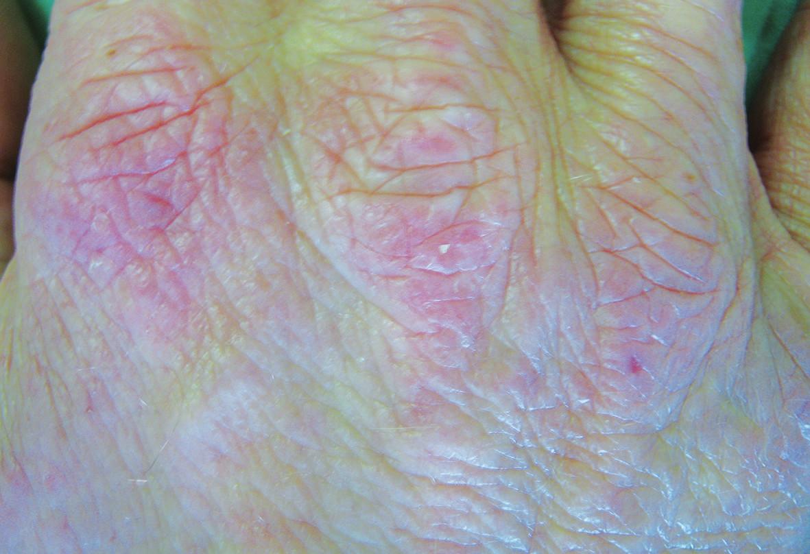 Proteinová kontaktní dermatitida na hřbetech rukou po mase a koření u kuchaře