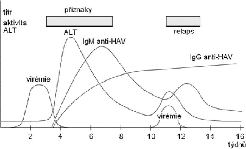 Výsledky vyšetření u relabující virové hepatitidy A (podle Chalupa P.: Problematika akutních virových hepatitid)