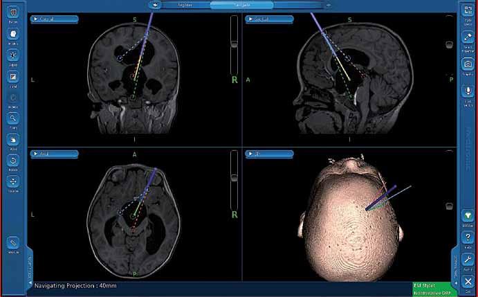Snímek z navigace – naplánované trajektorie k endoskopickému ošetření cysty III. komory.