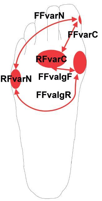 Základní principy zjednodušeného určení funkčního (sub)typu nohy: otlaky pod hlavičkou II. a III. metatarzu znamenají kompenzovaný či flexibilní (sub)typ (RFvarC, FFvarC, FFvalgF); otlaky pod V. metatarzem znamenají nekompenzovaný či rigidní (sub)typ (RFvarN, FFvarN, FFvalgR); otlaky pod hlavičkou I. metatarzu jsou typické pro FFvalg; otlaky na mediálním okraji distálního článku palce jsou typické pro FFvar