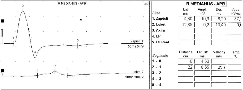 Obr. 5a. U 44letého muže se rozvinulo asymetrické oslabení všech čtyř končetin. Bez poruch čití – motorická neurografie n. medianus vpravo s průkazem těžšího bloku vedení.