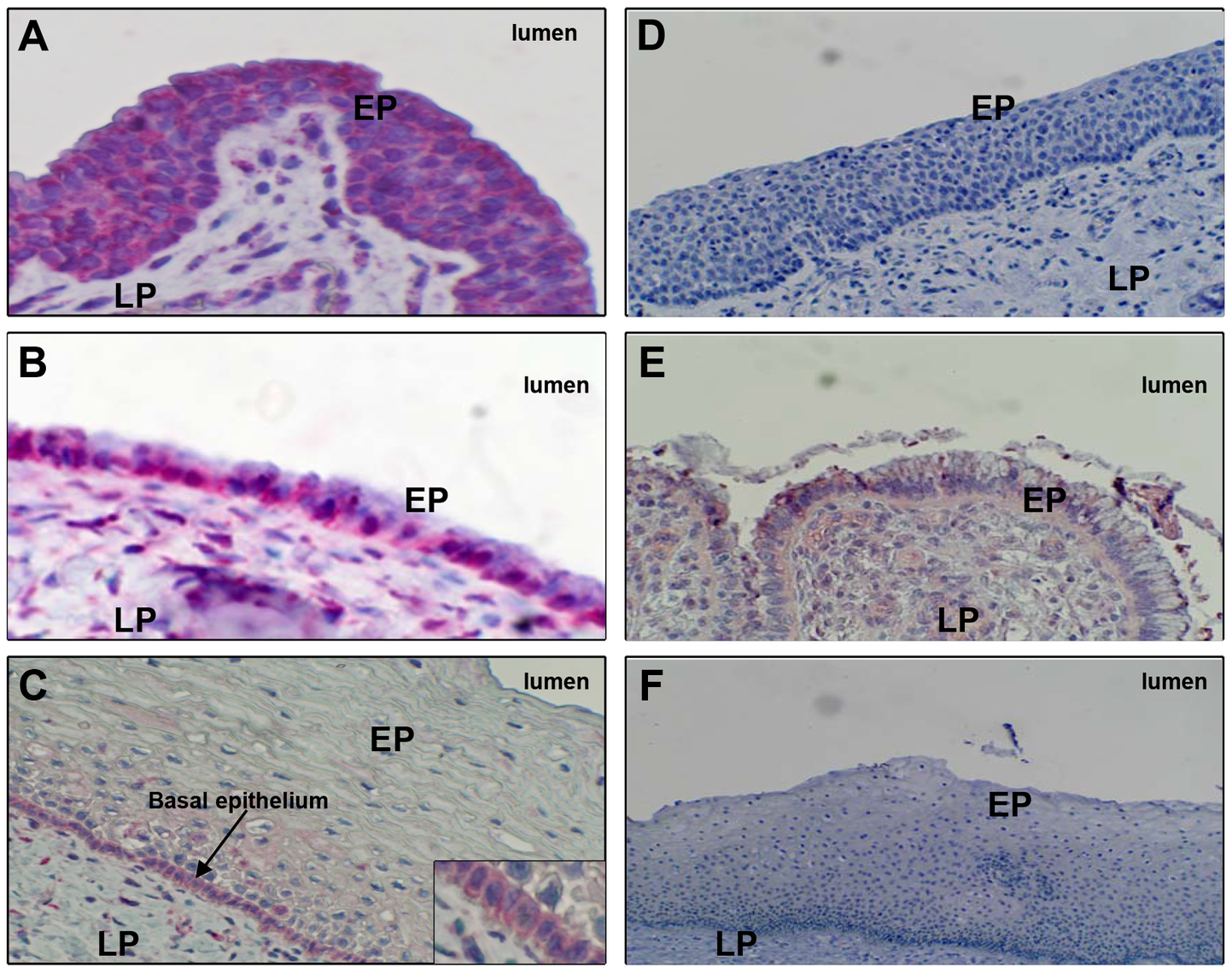 FcRn expression in human genital tissues, detected by immunohistochemistry.